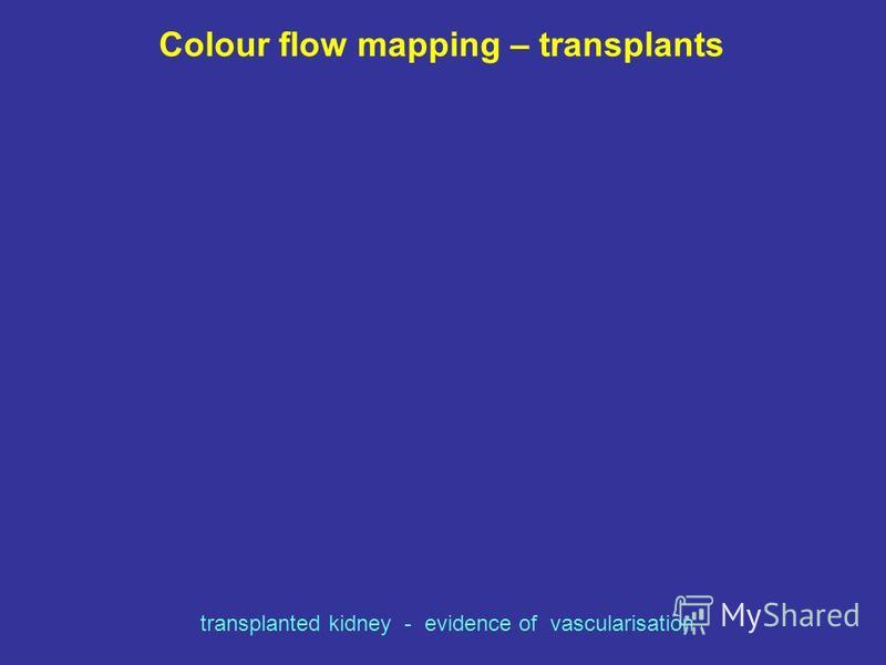 Colour flow mapping – transplants transplanted kidney - evidence of vascularisation