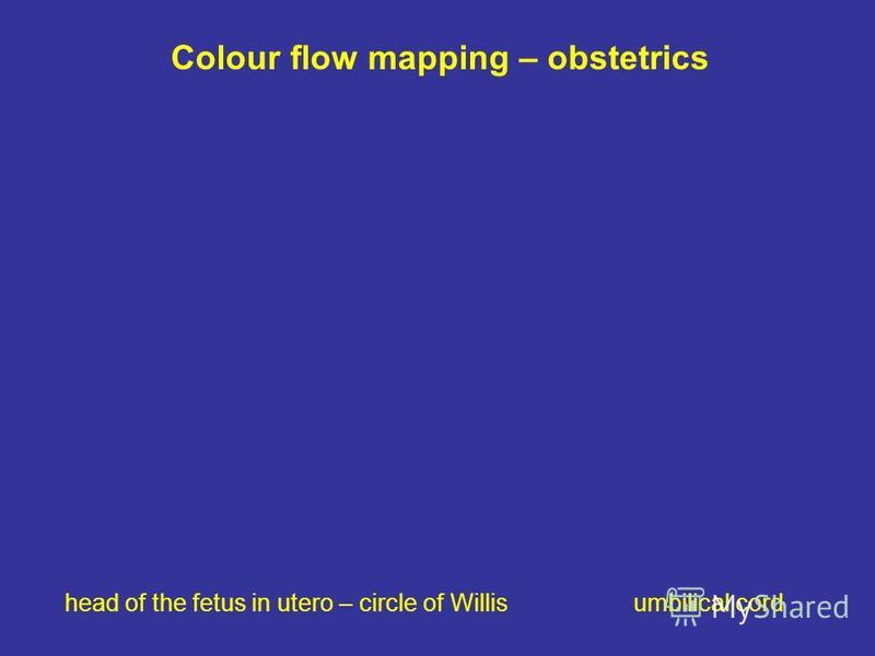 Colour flow mapping – obstetrics head of the fetus in utero – circle of Willis umbilical cord