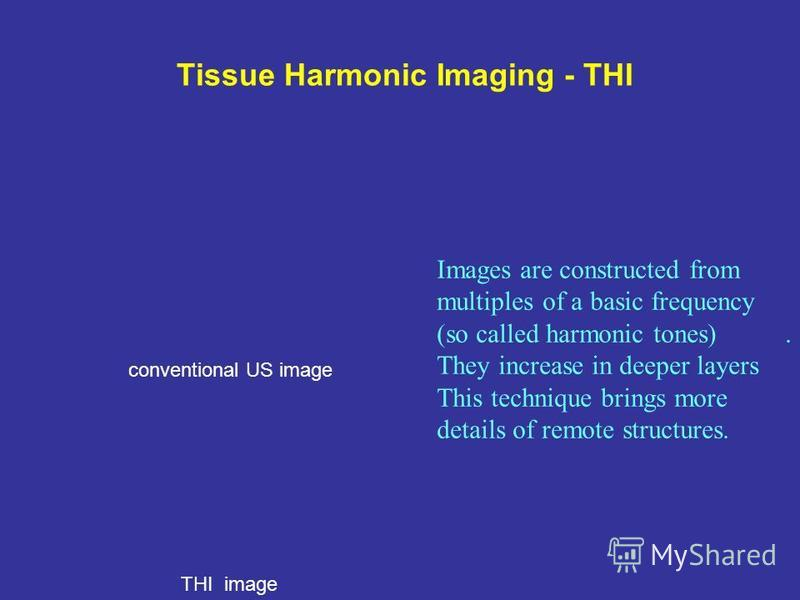 Tissue Harmonic Imaging - THI Images are constructed from multiples of a basic frequency (so called harmonic tones). They increase in deeper layers This technique brings more details of remote structures. conventional US image THI image
