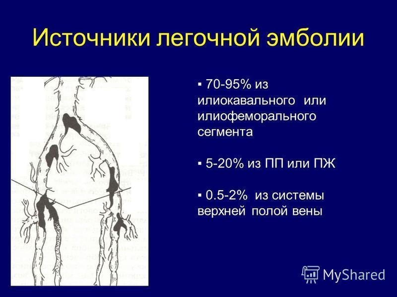Источники легочной эмболии 70-95% из илиокавального или илиофеморального сегмента 5-20% из ПП или ПЖ 0.5-2% из системы верхней полой вены