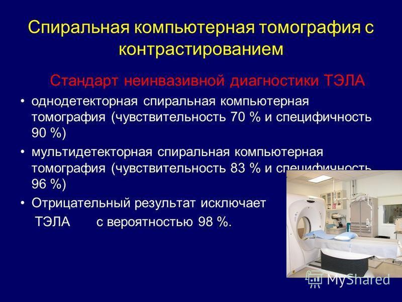 Спиральная компьютерная томография с контрастированием Стандарт неинвазивной диагностики ТЭЛА однодетекторная спиральная компьютерная томография (чувствительность 70 % и специфичность 90 %) мультидетекторная спиральная компьютерная томография (чувств