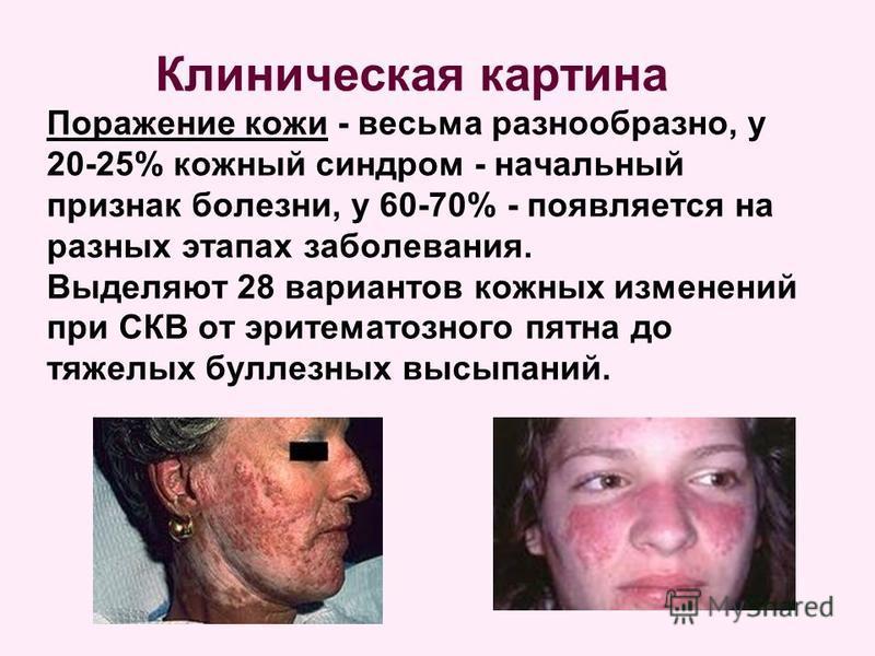 Клиническая картина Поражение кожи - весьма разнообразно, у 20-25% кожный синдром - начальный признак болезни, у 60-70% - появляется на разных этапах заболевания. Выделяют 28 вариантов кожных изменений при СКВ от эритематозного пятна до тяжелых булле