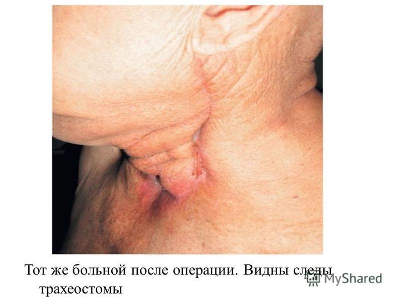 Тот же больной после операции. Видны следы трахеостомы