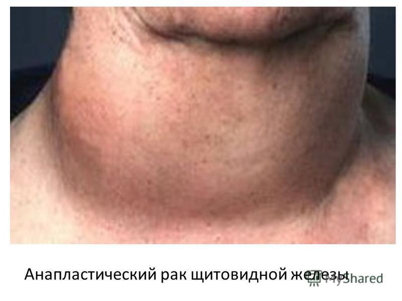 Анапластический рак щитовидной железы