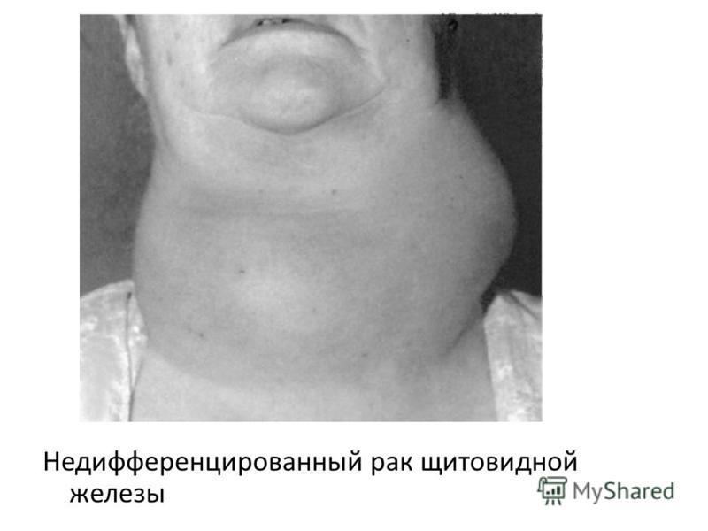Недифференцированный рак щитовидной железы