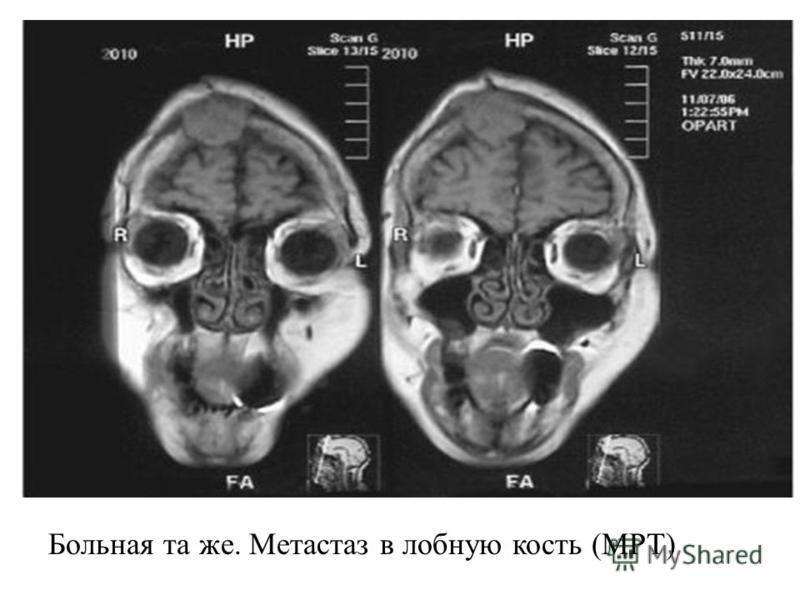 Больная та же. Метастаз в лобную кость (МРТ)