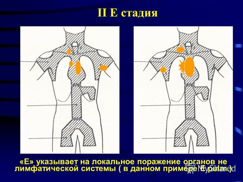 II E стадия «Е» указывает на локальное поражение органов не лимфатической системы ( в данном примере E pulm.)