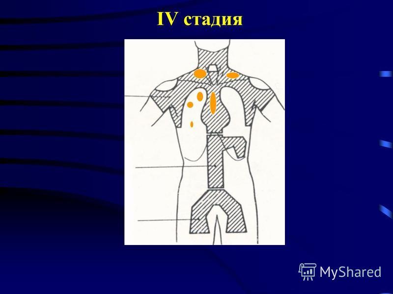 IV стадия