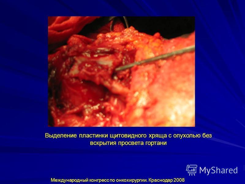 Международный конгресс по онкохирургии. Краснодар 2008 Выделение пластинки щитовидного хряща с опухолью без вскрытия просвета гортани
