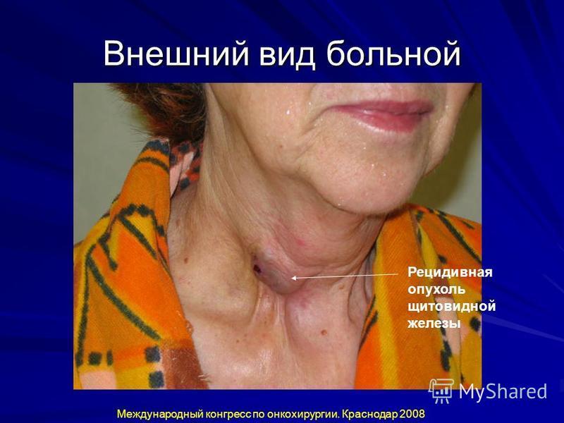 Внешний вид больной Рецидивная опухоль щитовидной железы Международный конгресс по онкохирургии. Краснодар 2008