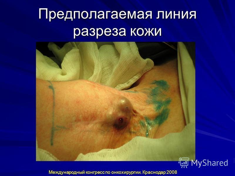 Предполагаемая линия разреза кожи Международный конгресс по онкохирургии. Краснодар 2008