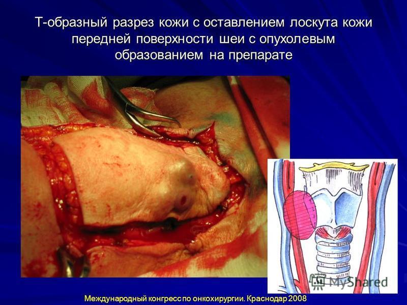 Т-образный разрез кожи с оставлением лоскута кожи передней поверхности шеи с опухолевым образованием на препарате Международный конгресс по онкохирургии. Краснодар 2008