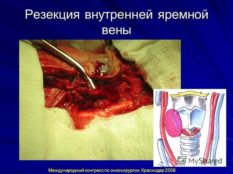 Резекция внутренней яремной вены Международный конгресс по онкохирургии. Краснодар 2008
