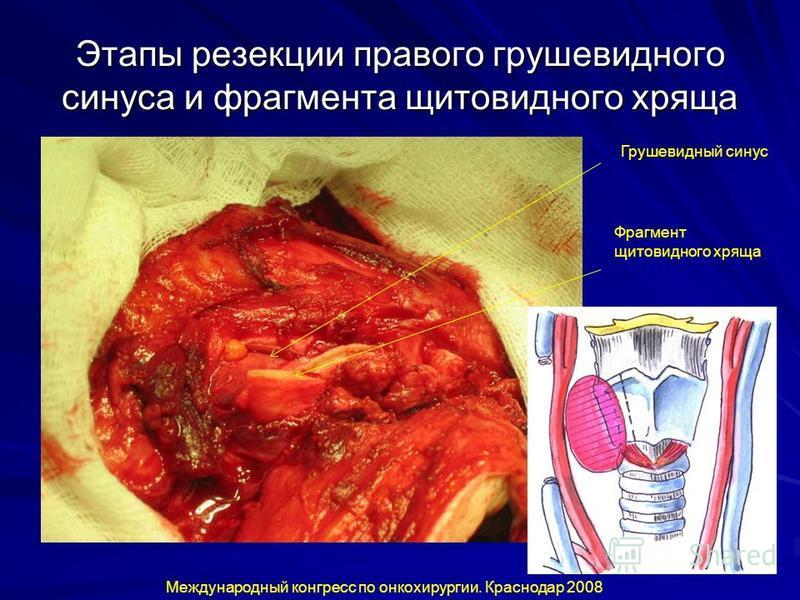 Этапы резекции правого грушевидного синуса и фрагмента щитовидного хряща Международный конгресс по онкохирургии. Краснодар 2008 Фрагмент щитовидного хряща Грушевидный синус