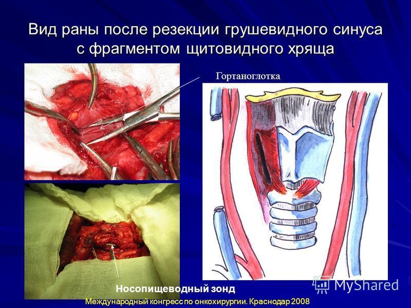 Вид раны после резекции грушевидного синуса с фрагментом щитовидного хряща Носопищеводный зонд Международный конгресс по онкохирургии. Краснодар 2008 Гортаноглотка