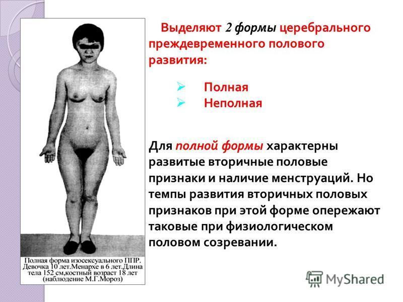 Для полной формы характерны развитые вторичные половые признаки и наличие менструаций. Но темпы развития вторичных половых признаков при этой форме опережают таковые при физиологическом половом созревании. Выделяют 2 формы церебрального преждевременн