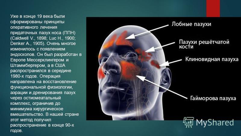 Уже в конце 19 века были сформированы принципы оперативного лечения придаточных пазух носа (ППН) (Caldwell V., 1898; Luc H., 1900; Denker A., 1905). Очень многое изменилось с появлением эндоскопов. Он был разработан в Европе Мессерклингером и Штаммбе