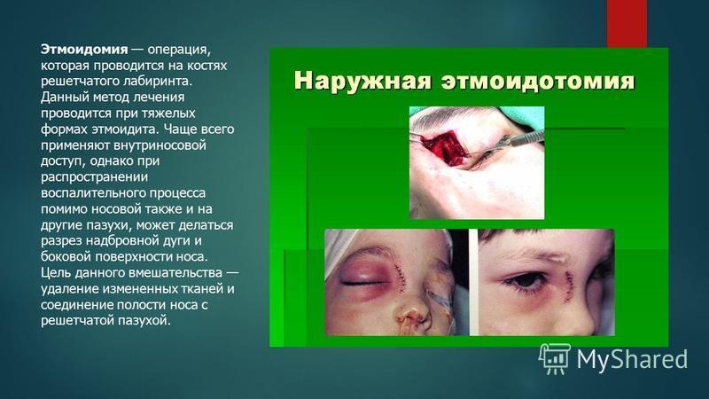 Этмоидомия операция, которая проводится на костях решетчатого лабиринта. Данный метод лечения проводится при тяжелых формах этмоидита. Чаще всего применяют внутриносовой доступ, однако при распространении воспалительного процесса помимо носовой также