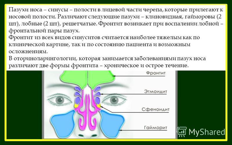 Пазухи носа – синусы – полости в лицевой части черепа, которые прилегают к носовой полости. Различают следующие пазухи – клиновидная, гайморовы (2 шт), лобные (2 шт), решетчатые. Фронтит возникает при воспалении лобной – фронтальной пары пазух. Фронт