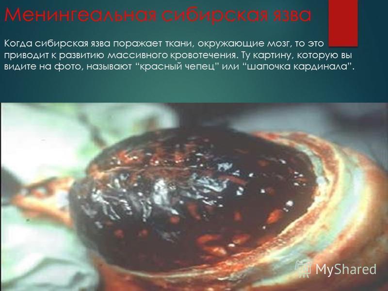 Менингеальная сибирская язва Когда сибирская язва поражает ткани, окружающие мозг, то это приводит к развитию массивного кровотечения. Ту картину, которую вы видите на фото, называют красный чепец или шапочка кардинала.