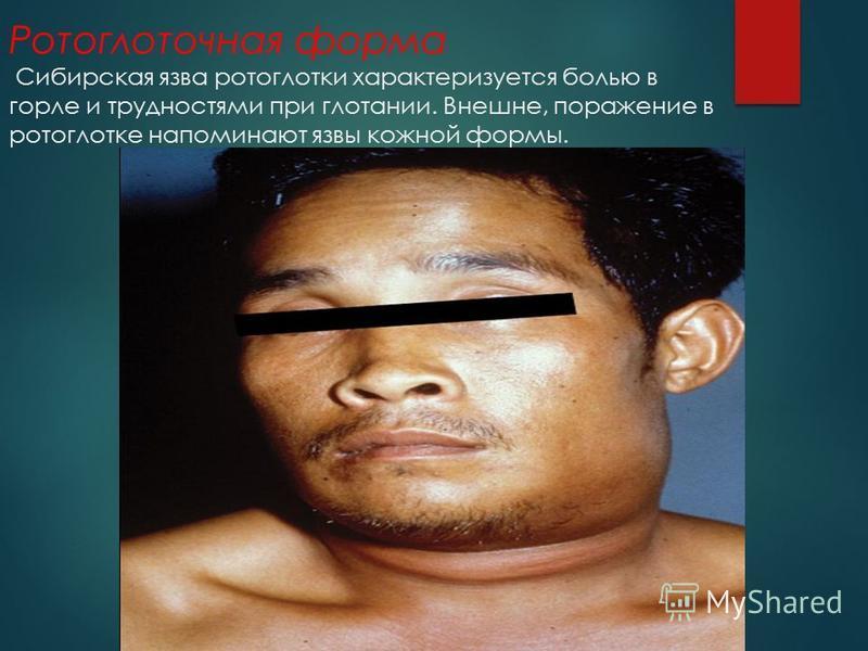 Ротоглоточная форма Сибирская язва ротоглотки характеризуется болью в горле и трудностями при глотании. Внешне, поражение в ротоглотке напоминают язвы кожной формы.