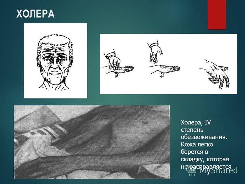 ХОЛЕРА Холера, IV степень обезвоживания. Кожа легко берется в складку, которая не расправляется