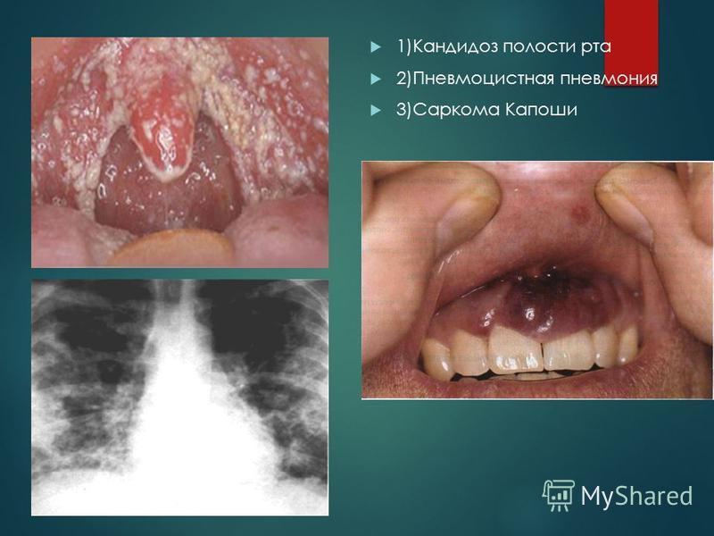 1)Кандидоз полости рта 2)Пневмоцистная пневмония 3)Саркома Капоши