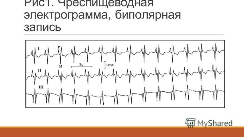 Рис 1. Чреспищеводная электрограмма, биполярная запись