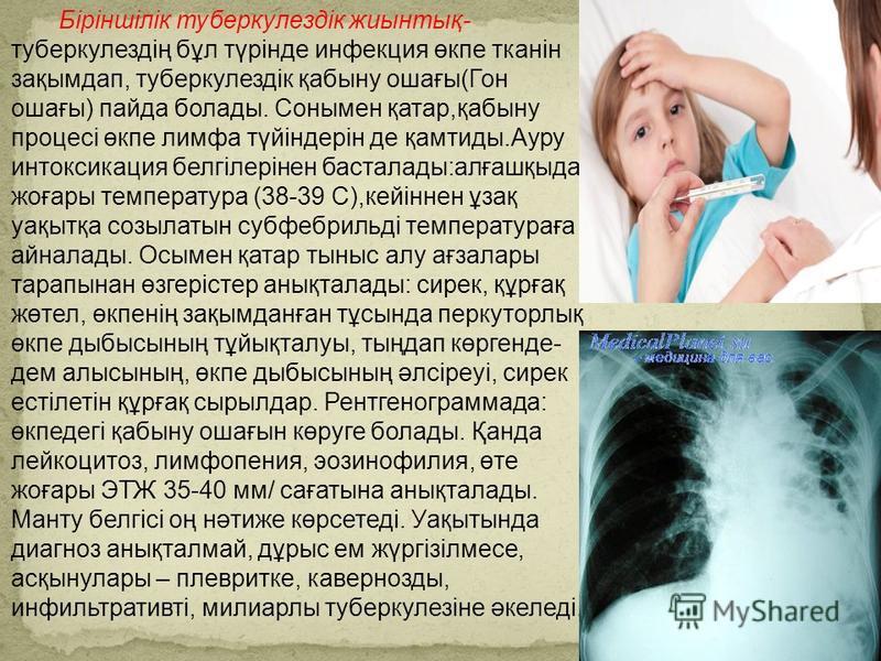 Біріншілік туберкулездік жиынтық- туберкулездің бұл түрінде инфекция өкпе тканін зақымдап, туберкулездік қабыну ошағы(Гон ошағы) пайда болады. Сонымен қатар,қабыну процесі өкпе лимфа түйіндерін де қамтиды.Ауру интоксикация белгілерінен басталады:алға
