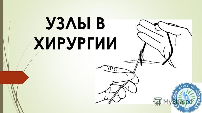 Структура узла