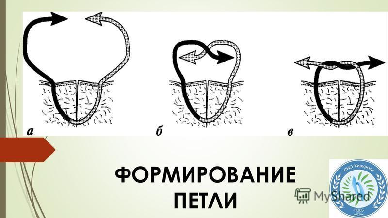 ФОРМИРОВАНИЕ ПЕТЛИ