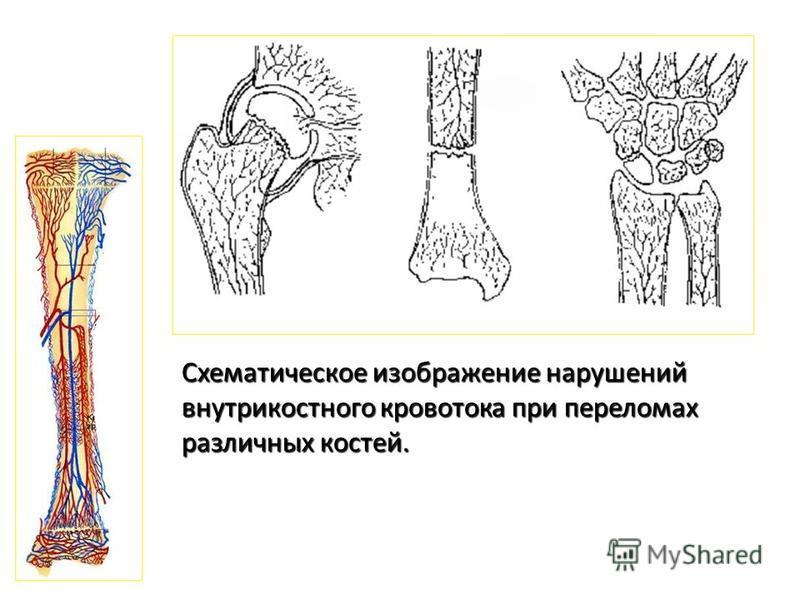 Схематическое изображение нарушений внутрикостного кровотока при переломах различных костей.