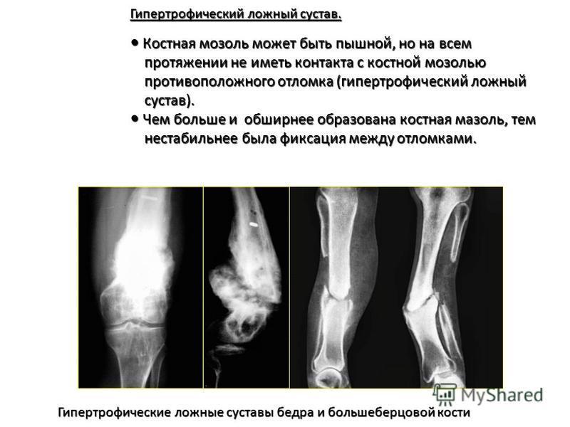 Гипертрофический ложный сустав. Гипертрофический ложный сустав. Костная мозоль может быть пышной, но на всем Костная мозоль может быть пышной, но на всем протяжении не иметь контакта с костной мозолью протяжении не иметь контакта с костной мозолью пр