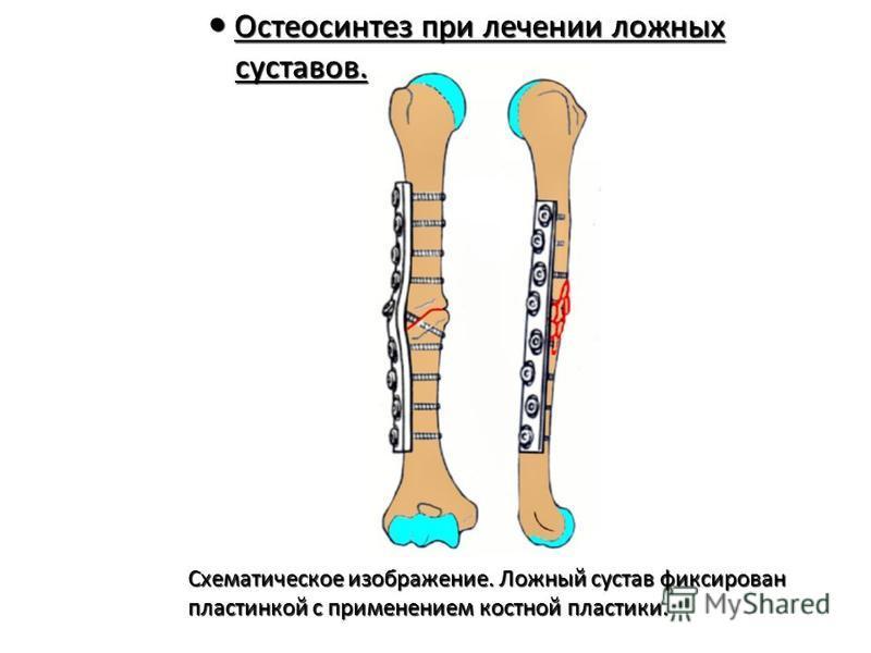 Остеосинтез при лечении ложных суставов. Остеосинтез при лечении ложных суставов. Схематическое изображение. Ложный сустав фиксирован Схематическое изображение. Ложный сустав фиксирован пластинкой с применением костной пластики. пластинкой с применен
