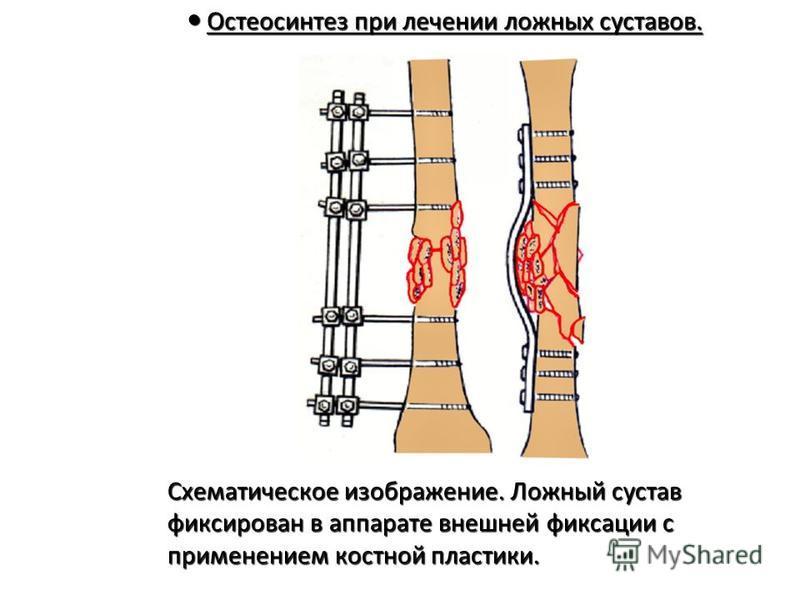 Остеосинтез при лечении ложных суставов. Остеосинтез при лечении ложных суставов. Схематическое изображение. Ложный сустав Схематическое изображение. Ложный сустав фиксирован в аппарате внешней фиксации с фиксирован в аппарате внешней фиксации с прим