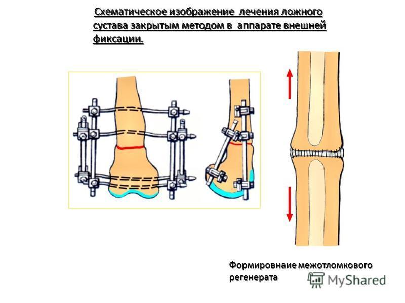 Схематическое изображение лечения ложного Схематическое изображение лечения ложного сустава закрытым методом в аппарате внешней сустава закрытым методом в аппарате внешней фиксации. фиксации. Формировнаие межотломкового регенерата