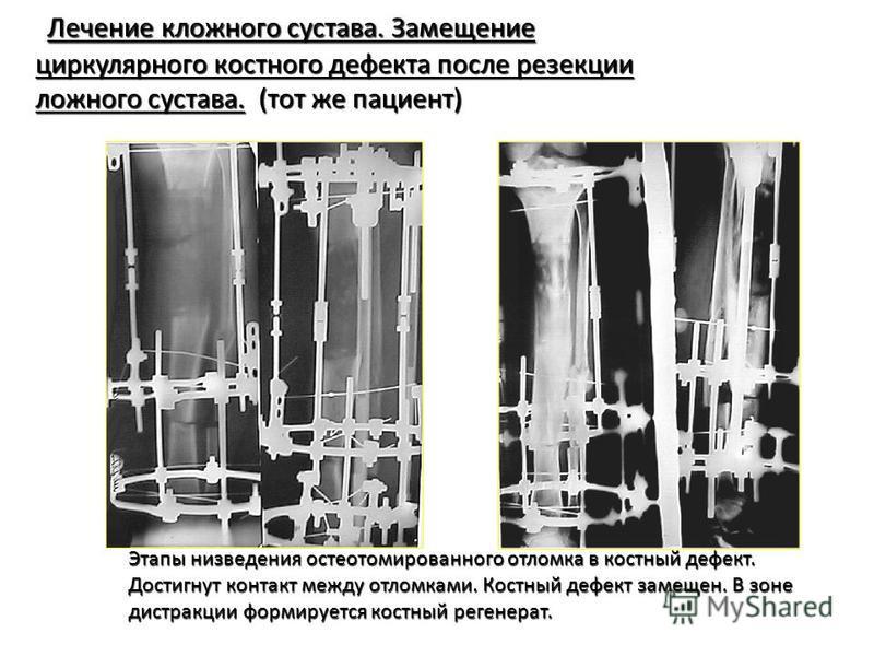 Лечение кложного сустава. Замещение Лечение кложного сустава. Замещение циркулярного костного дефекта после резекции циркулярного костного дефекта после резекции ложного сустава. (тот же пациент) ложного сустава. (тот же пациент) Этапы низведения ост