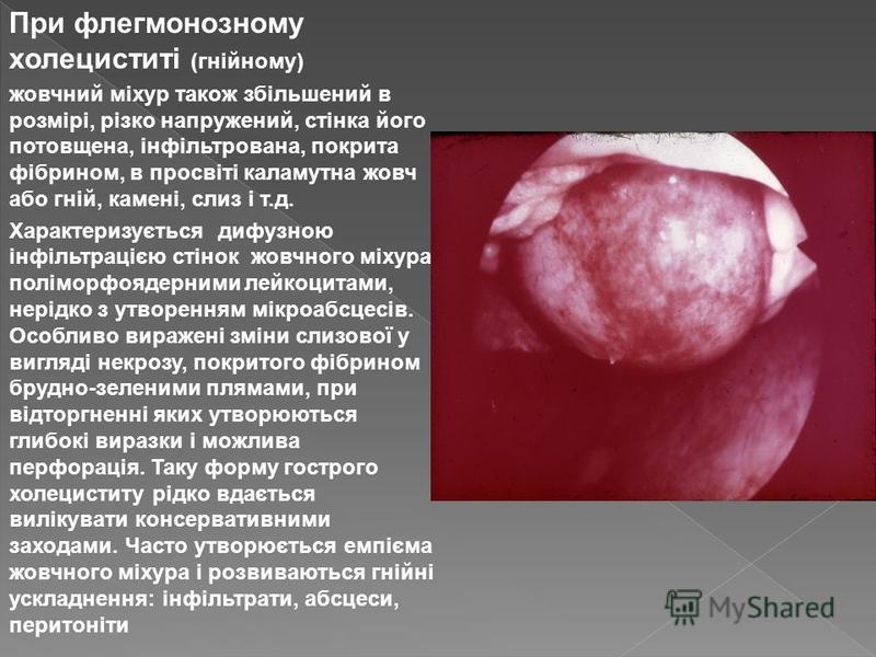 При флегмонозному холециститі (гнійному) жовчний міхур також збільшений в розмірі, різко напружений, стінка його потовщена, інфільтрована, покрита фібрином, в просвіті каламутна жовч або гній, камені, слиз і т.д. Характеризується дифузною інфільтраці
