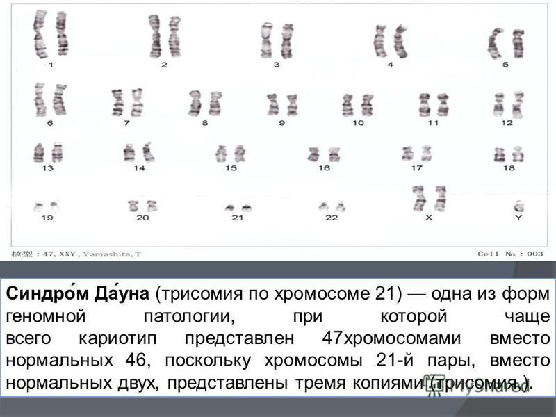 Синдро́м Да́она (трисомия по хромосоме 21) одна из форм геномной патологии, при которой чаще всего кариотип представлен 47 хромосомами вместо нормальных 46, поскольку хромосомы 21-й пары, вместо нормальных двух, представлены тремя копиями (трисомия,)
