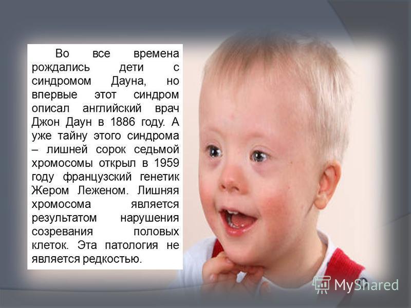 Во все времена рождались дети с синдромом Даона, но впервые этот синдром описал английский врач Джон Даун в 1886 году. А уже тайну этого синдрома – лишней сорок седьмой хромосомы открыл в 1959 году французский генетик Жером Леженом. Лишняя хромосома