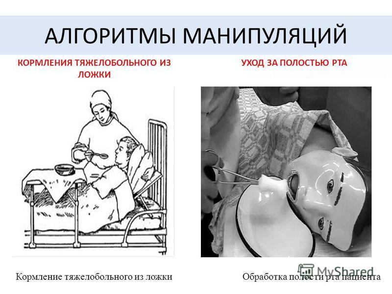 АЛГОРИТМЫ МАНИПУЛЯЦИЙ КОРМЛЕНИЯ ТЯЖЕЛОБОЛЬНОГО ИЗ ЛОЖКИ Кормление тяжелобольного из ложки УХОД ЗА ПОЛОСТЬЮ РТА Обработка полости рта пациента