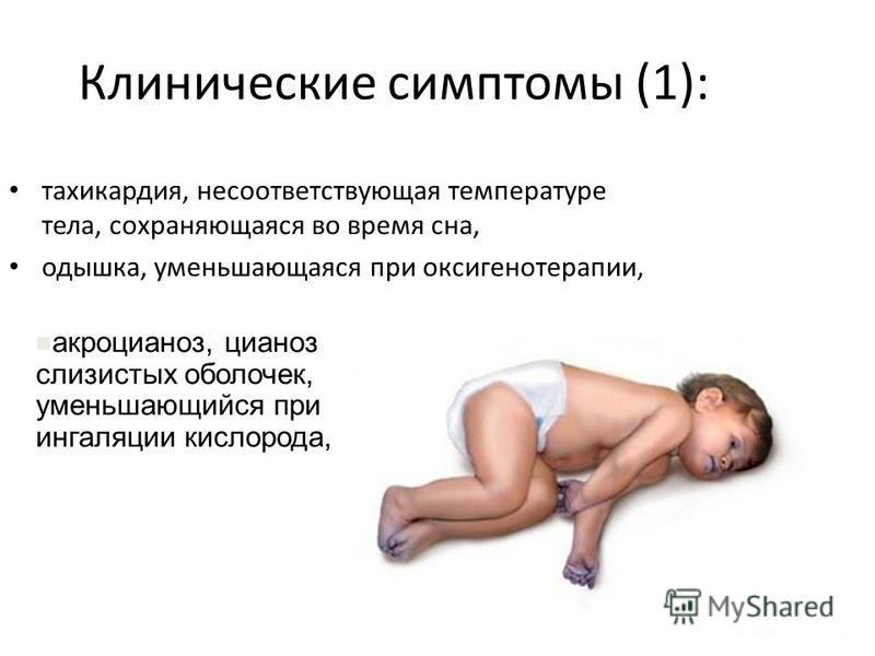 Клинические симптомы (1): тахикардия, несоответствующая температуре тела, сохраняющаяся во время сна, одышка, уменьшающаяся при оксигенотерапии, акроцианоз, цианоз слизистых оболочек, уменьшающийся при ингаляции кислорода,