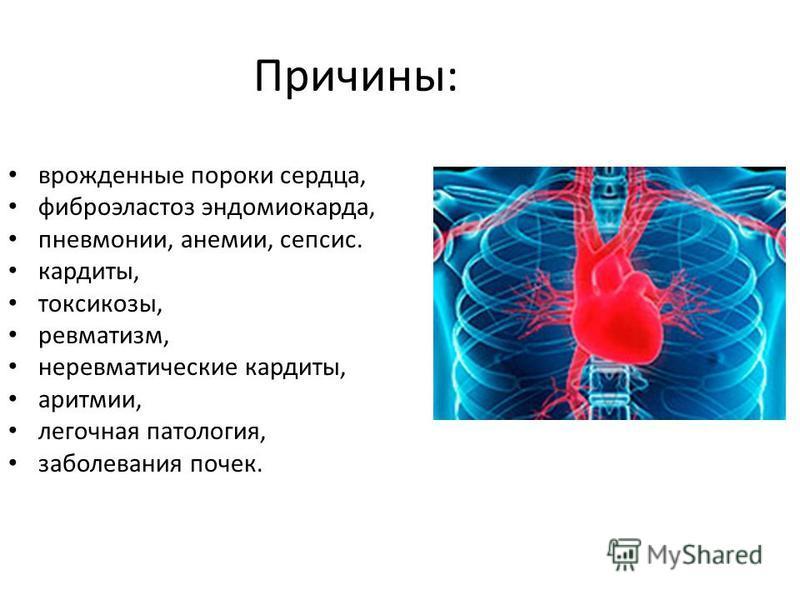 Причины: врожденные пороки сердца, фиброэластоз эндомиокарда, пневмонии, анемии, сепсис. кардиты, токсикозы, ревматизм, неревматические кардиты, аритмии, легочная патология, заболевания почек.