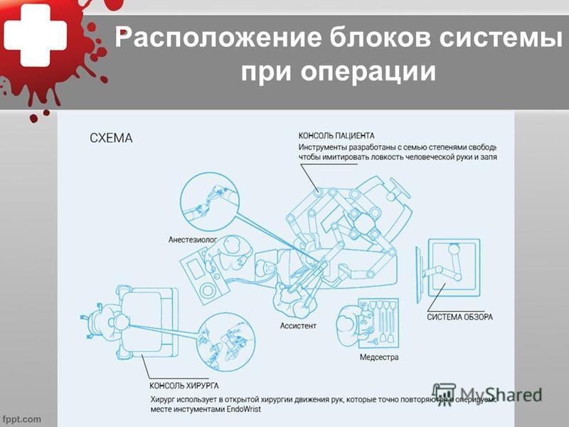 Расположение блоков системы при операции