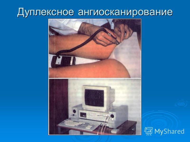 Дуплексное ангиосканирование