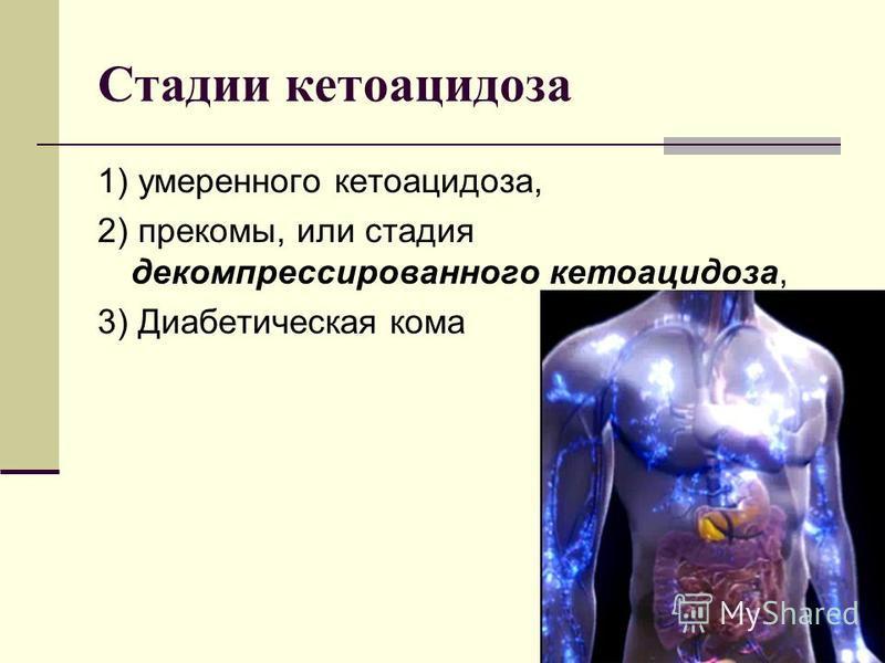 Стадии кетоацидоза 1) умеренного кетоацидоза, 2) прекомы, или стадия декомпрессированного кетоацидоза, 3) Диабетическая кома