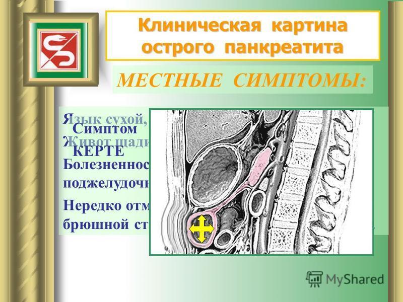Клиническая картина острого панкреатита МЕСТНЫЕ СИМПТОМЫ: Язык сухой, обложен налетом. Живот щадится при дыхании. Болезненность при пальпации в проекции поджелудочной железы. Нередко отмечается напряжение передней брюшной стенки в верхних отделах жив