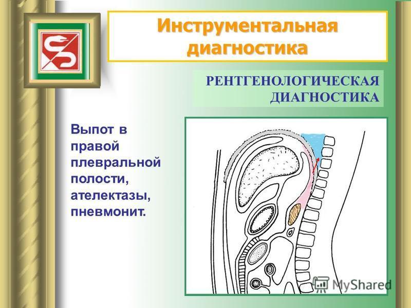 РЕНТГЕНОЛОГИЧЕСКАЯ ДИАГНОСТИКА Выпот в правой плевральной полости, ателектазы, пневмонит.