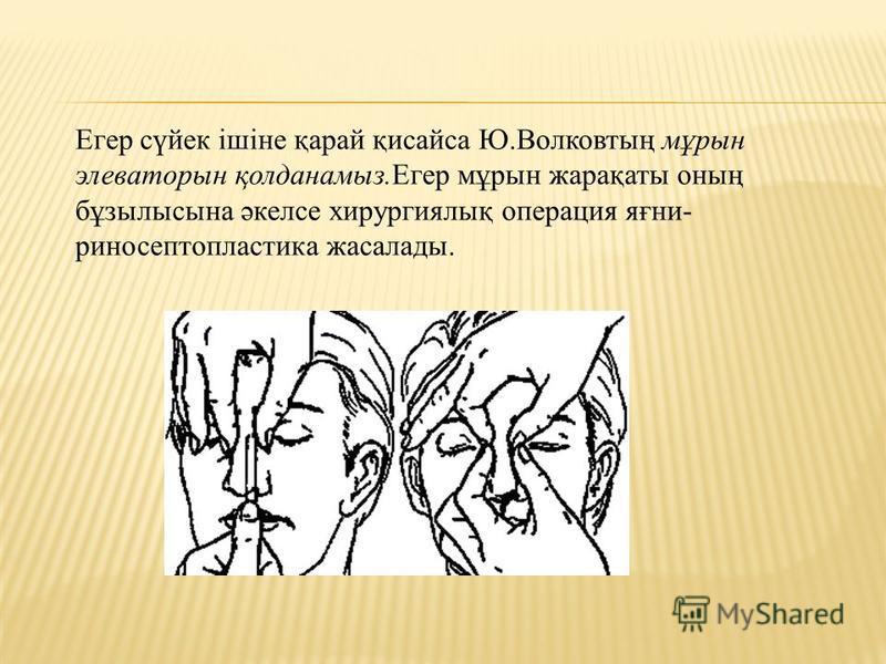 Егер сүйек ішіне қарай қисайса Ю.Волковтың мұрын элеваторын қолданамыз.Егер мұрын жарақаты оның бұзылысына әкелсе хирургиялық операция яғни- риносептопластика жасалады.