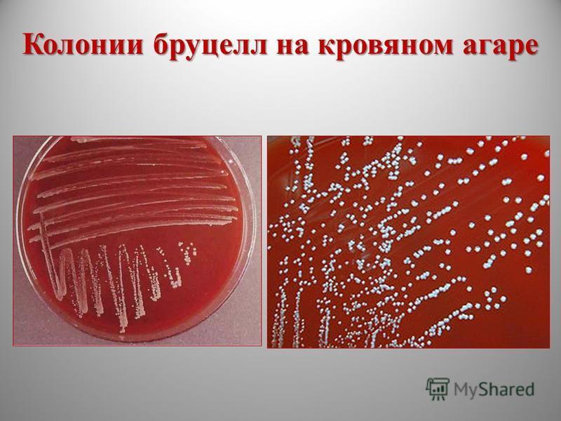 Колонии бруцелл на кровяном агаре
